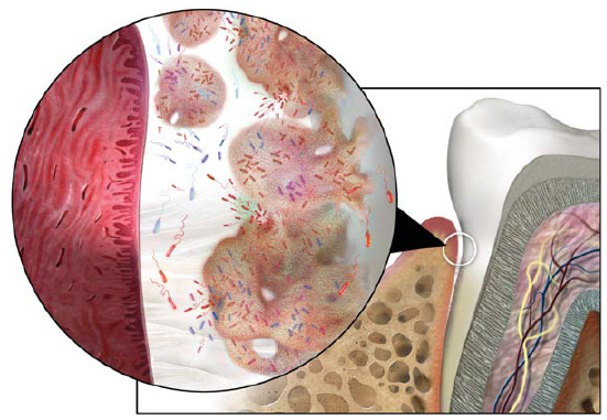 The Role of Dental Plaque Biofilm in Oral Health Course