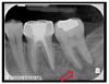 Fig 3. Periapical taken 5 months after Figure 1. Moth-eaten borders and apical root resorption affecting and surrounding tooth No. 18.